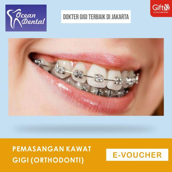 Ocean Dental Clinic Pemasangan kawat gigi (Orthodonti)