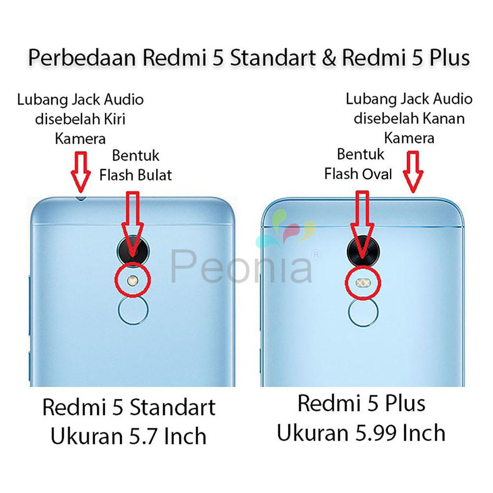 Fitur Peonia Transparent Acrylic Hybrid Case For Xiaomi Redmi 5 Plus Electroplating Ultrathin Samsung J7 Pro 2017 Hitam Detail Gambar 599 Inch Rounded Tempered Glass 25d Bening Terkini