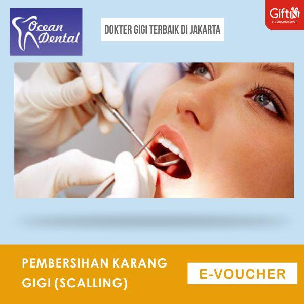 Ocean Dental Clinic Pembersihan Karang Gigi (scalling) By Giftn.