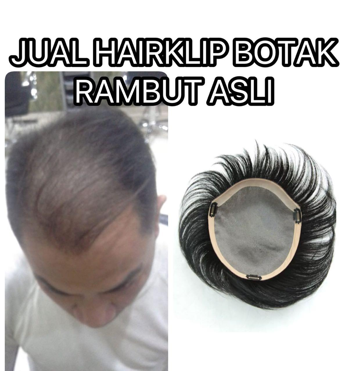 Hairclip - Hairklip - Penutup kebotakan - Human hair asli - Rambut asli - Real hair
