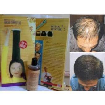 Harga Hair Tonicum Penumbuh Rambut Dan Penyubur Rambut (Alami) Murah