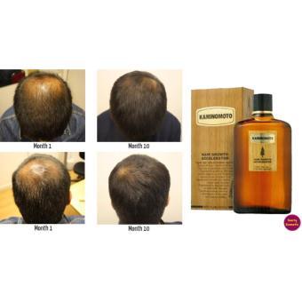 Harga Tonik Kaminomoto / Kaminomoto Hair Growth Accelerator / Tonik Penumbuh Rambut Pencegah Kebotakan Best Seller Original – 150ml Murah
