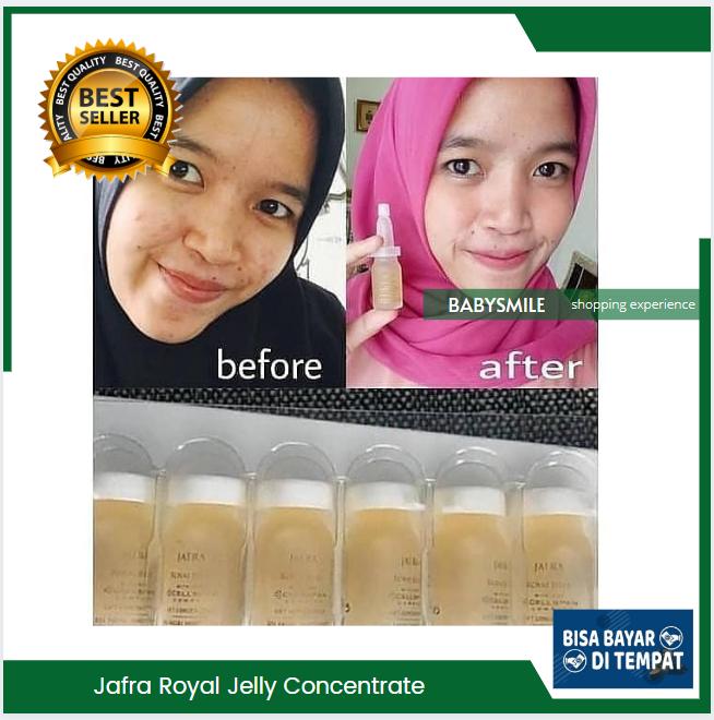 Manfaat Serum Royal Jelly Jafra Untuk Bopeng